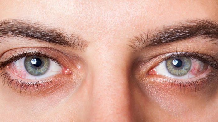 Signs of Eye Cancer and How to Avoid it