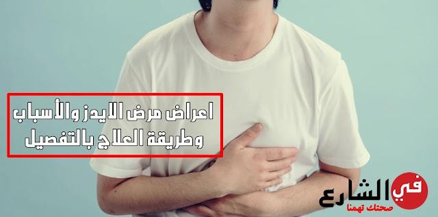 أعراض الإيدز الأولية