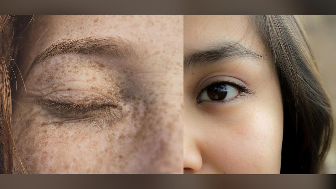 peace-out-dark-spots, Best-Concealer-For-Dark-Spots,how-to-get-rid-of-pimples-and-dark-spots-on-face-overnight-naturally, how+to+remove+dark+spots+on+face+overnight