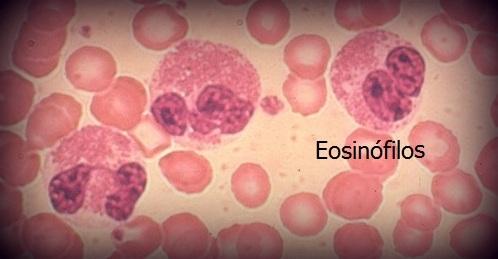 eozonofil paraziták