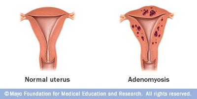 Adenomyosis Uteri Erfahrungen