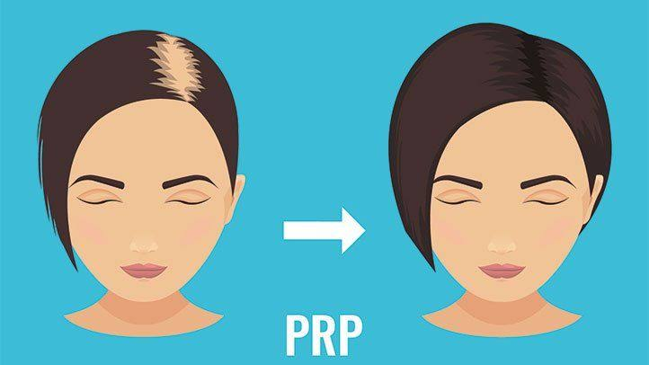 Where can get the PRP treatment in Ludhiana?