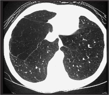 diferencias entre asma y epoc pdf
