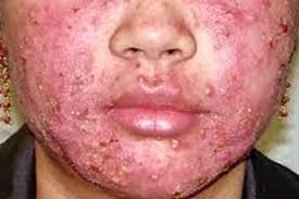 How Can You Get Rid Of Acne Vulgaris