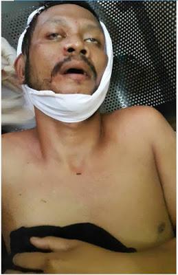 Orang Yang Diutus Membunuh Habib Rizieq Tiba-Tiba Tewas, Ada Apa?