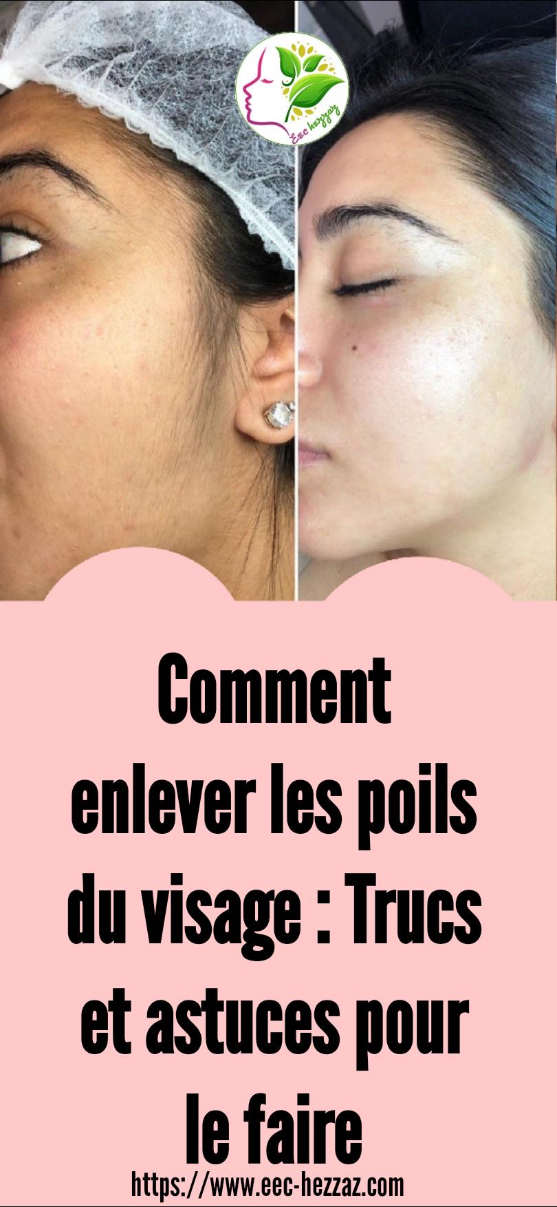 Comment enlever les poils du visage : Trucs et astuces pour le faire