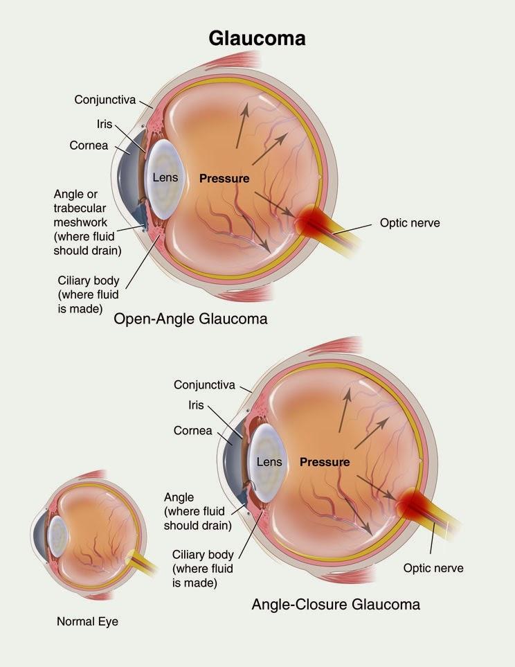 Blurred Peripheral Vision