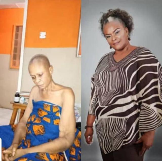 Nigerian actress, Ify Onwuemene seeks financial help as she battles cancer
