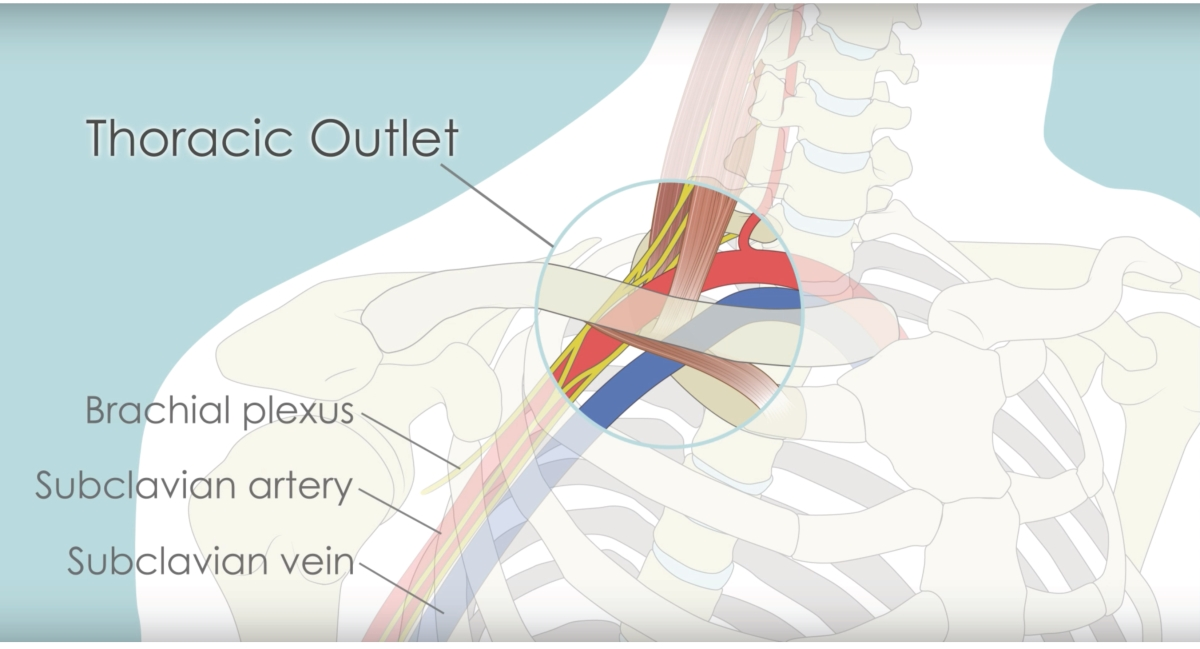 Massage La Mesa: THORACIC OUTLET SYNDROME AND MASSAGE