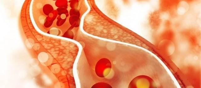 Όσα περισσότερα χρόνια κάποιος έχει υψηλή «κακή» χοληστερίνη τόσο αυξάνεται ο κίνδυνος για την καρδιά του