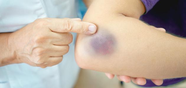 تعرف على أسباب ظهور الكدمات المفاجئة في الجسم
