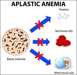 Severe Aplastic Anaemia, Ayurvedic Treatment