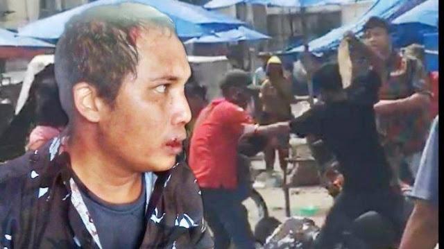 Rebutan Lahan Parkir, Pemuda Pancasila vs AMPI Bentrok di Pasar hingga Kepala Berdarah-darah