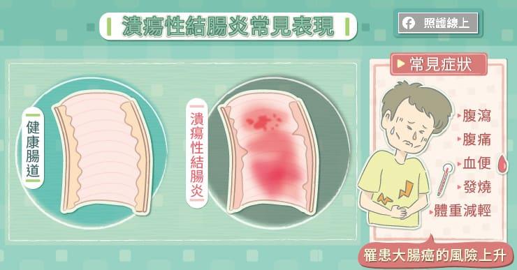 潰瘍性結腸炎常見表現