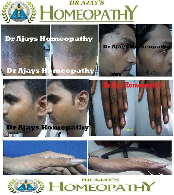 Dr Ajays Homeopathy : HOMEOPATHY FOR WARTS