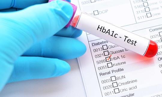 HbA1C Değerinizi Düşürmenin 6 Yolu