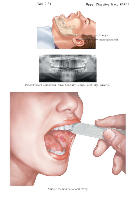 Diagnostic Approach to Oral Lesions