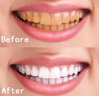 Foto Sebelum dan Setelah Perawatan Memutihkan Gigi Secara Alami
