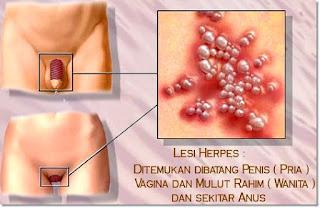 Penyakit Herpesmu Kambuh Lagi?