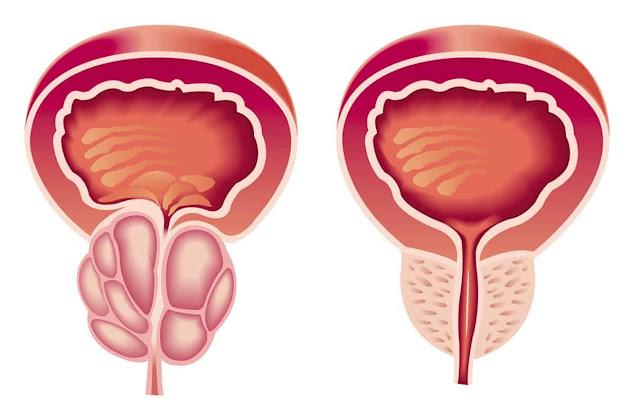 هل تعلم ما هو سرطان البروستاتا؟ الاعراض والأسباب والعلاج