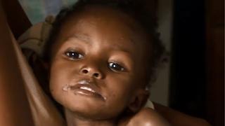 Από πείνα οι μισοί θάνατοι παιδιών στην Αφρική