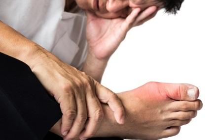 Mengenal Penyakit Asam Urat dan Cara Pencegahannya
