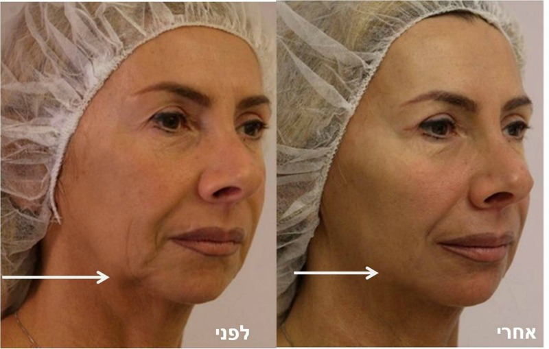 """מתיחת פנים בחוטים ללא ניתוח אצל ד""""ר קליין"""