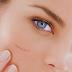 Tips Kecantikan Menyamarkan Bekas Luka di Wajah Secara Alami