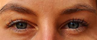puffy eyelid