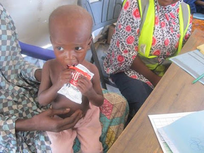 Ali Abdullahi, 2 years old, eats ready-to-use therapeutic food for treatment