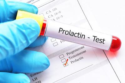 xet-nghiem-Hormone-Prolactin
