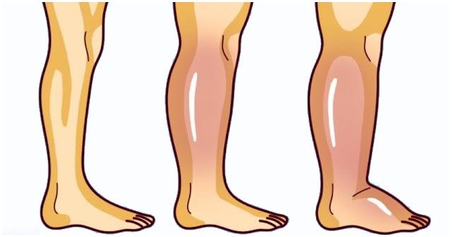 Pour combattre la rétention d'eau et l'enflure dans les jambes, essayer ces huiles essentielles