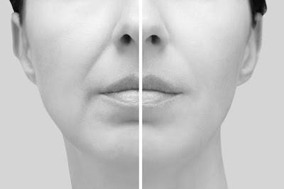 Comment réduire les rides nasogéniennes sans comblement ni chirurgie