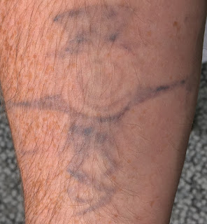 Tattoo fading before my seventh Picosure session
