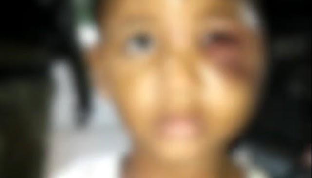 Crueldade! Padrasto quebra braço de bebê e agride criança de apenas 4 anos em Teresina