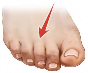 how to fix bent second toe