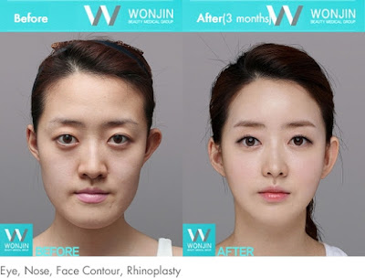 before and after korean celebrities face contouring-1