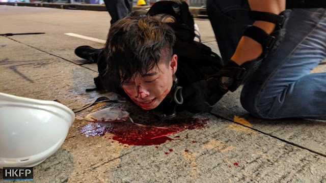"""Hong Kong: nếu ngày mai có """"tắm máu"""" bơi chế độ lưu manh độc tài cộng sản Trung quốc"""