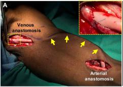 Implanting bioengineered acellular blood vessels