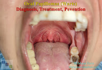 papilloma in the tongue,HPV treatment in the mouth,AHCC,squamous papilloma,HPV wart in the mouth,oral papilloma,HPV,