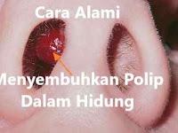 Ini Obat Alami Polip Hidung