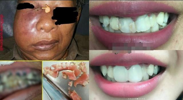 Awas!! Veneer Gigi Abal-Abal Bisa Berakibat Fatal, Bahkan Berujung Kematian