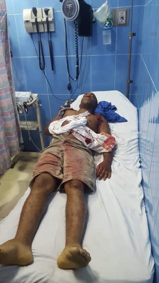 Matan a tiros un agente de la PN en La Ciénaga de Barahona.