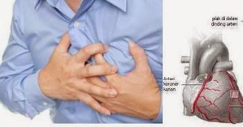 Nyeri dada sebelah kiri penyakit jantung kah? | Berbagi ...