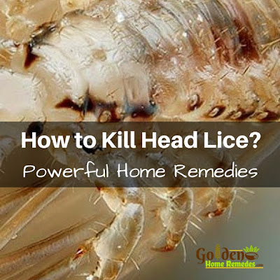 Head Lice Treatment, How To Get Rid Of Hair Lice, Home Remedies For Head Lice, Head Lice Home Remedies, How To Get Rid Of Head Lice, Treatment For Head Lice, How To Remove Head Lice, How To Treat Head Lice, Hair Lice, Hair Lice Remedies, Head Lice Remedies