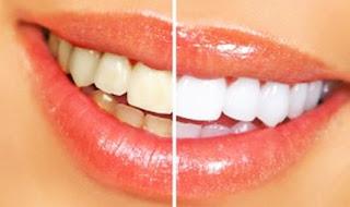 Produk White Light memutihkan gigi dan menghilangkan bau mulut dengan maksimal