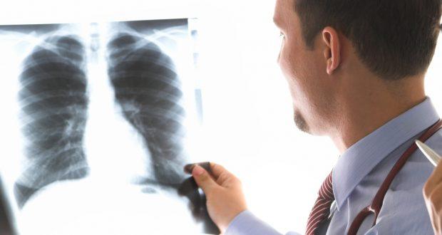 سرطان الرئة..لماذا أصبح متفشيا في مناطق اشتوكة؟