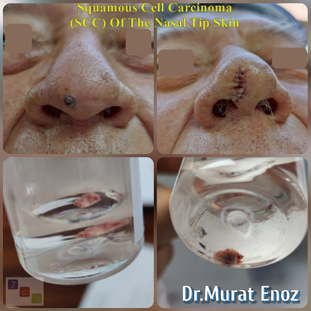 Squamous Cell Carcinoma, SCC, The Nasal Tip Skin Cancer, Nose Tumor