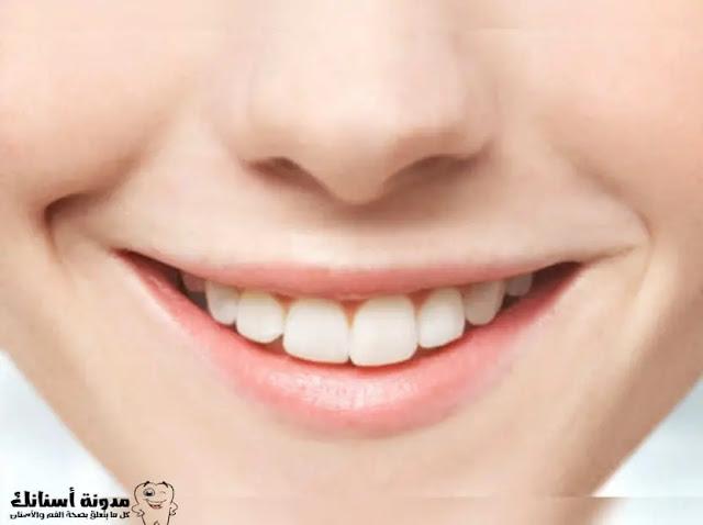 14 علاج منزلي طبيعي لاصفرار الأسنان ، بدون الفلورايد السام.