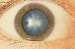 Treatment of Cataract
